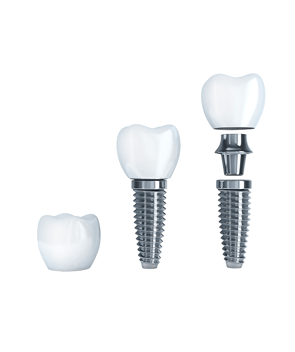 Dental Abutments & Screws