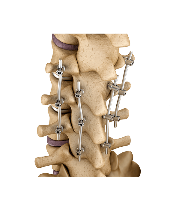 Spine Fixation